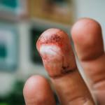 Pořezaný prst