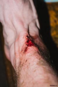 Nehoda na kole