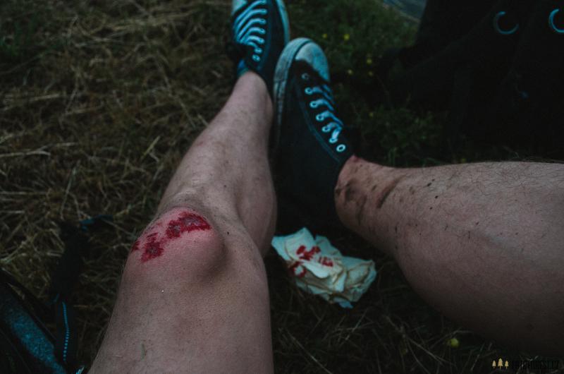 Spadl jsem na kole na kolejích