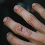 Popálená ruka